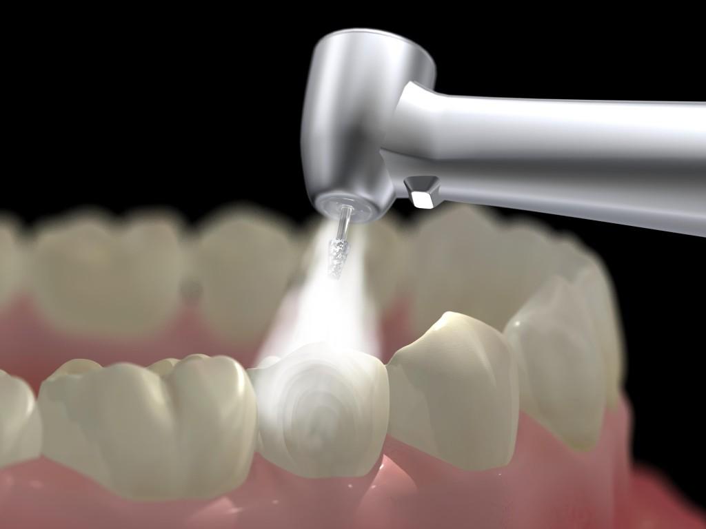 Dental Filings
