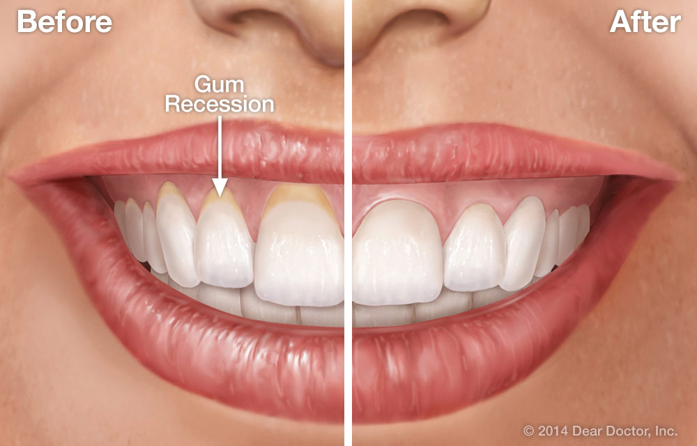 Gum Re Contouring