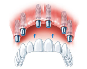 All On 6 Dental Implant
