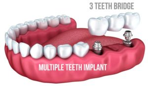 Multi Teeth Dental Implant